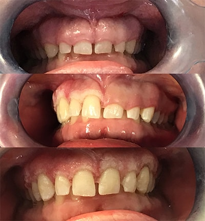Before and after of a patient getting gum contouring from the Solea laser