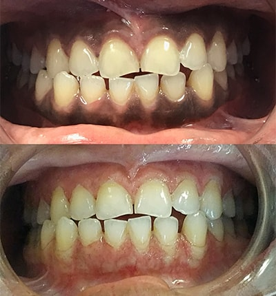 Depigmentation before and after, thanks to Solea laser from Mitchell Dental Care Center