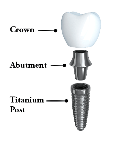 A diagram of the three parts of a dental implant: Crown, abutment, and titanium post
